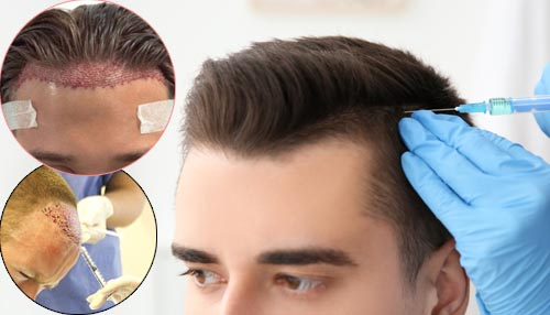 Are hair transplants painful