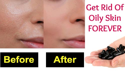 Get rid of oily skin