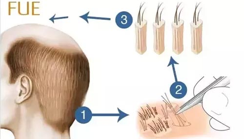 How does FUE transplant work