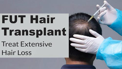 Who is the eligible patient for opting for The FUT hair transplant?